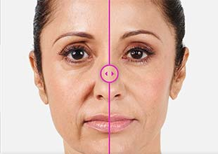 Juvederm | Renew Aesthetic Clinic and Med Spa