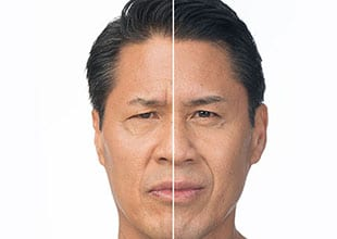 before and after botox 3