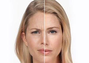 before and after botox injection