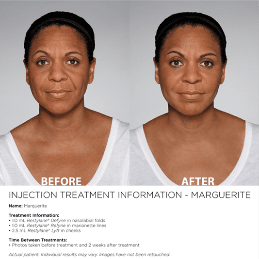 before and after injection restylane