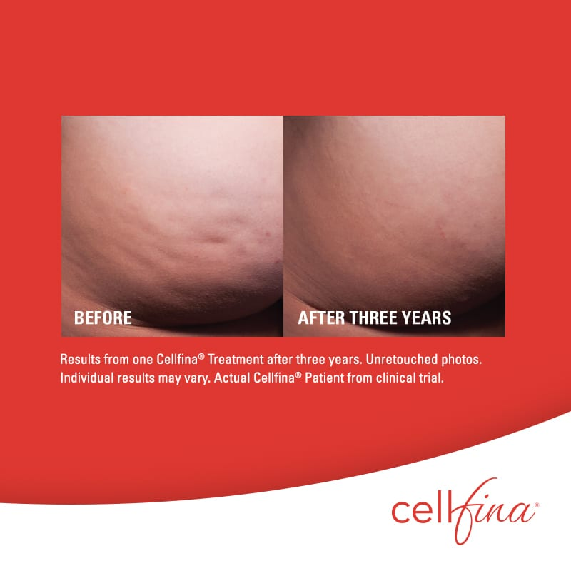 Cellfina Cellulite treatment before after butt