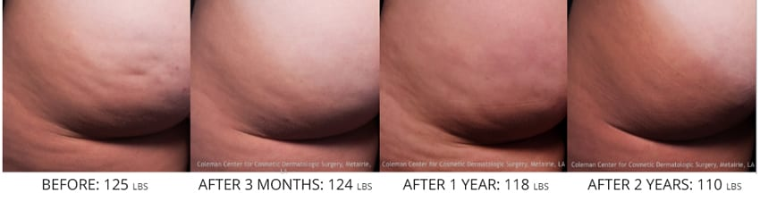 Cellfina Cellulite treatment before after butt 110 lbs