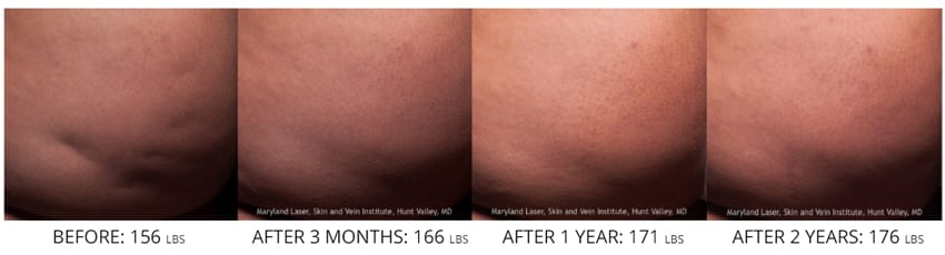 Cellfina Cellulite treatment before after butt 2 years
