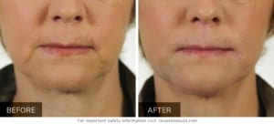 Revanesse Versa Before and After photos