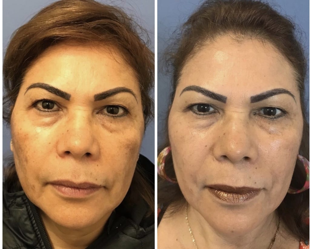 Beaverton 59 year old LaseMD treatment patient before and after for melasma
