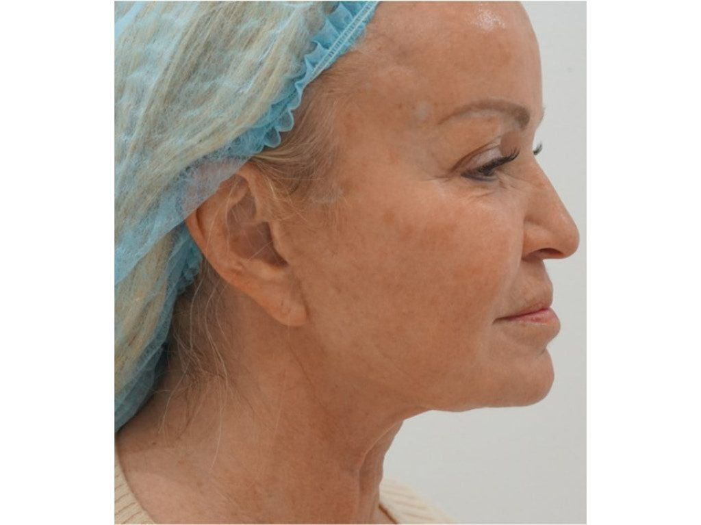 Softwave ultrasound skin treatment before and after
