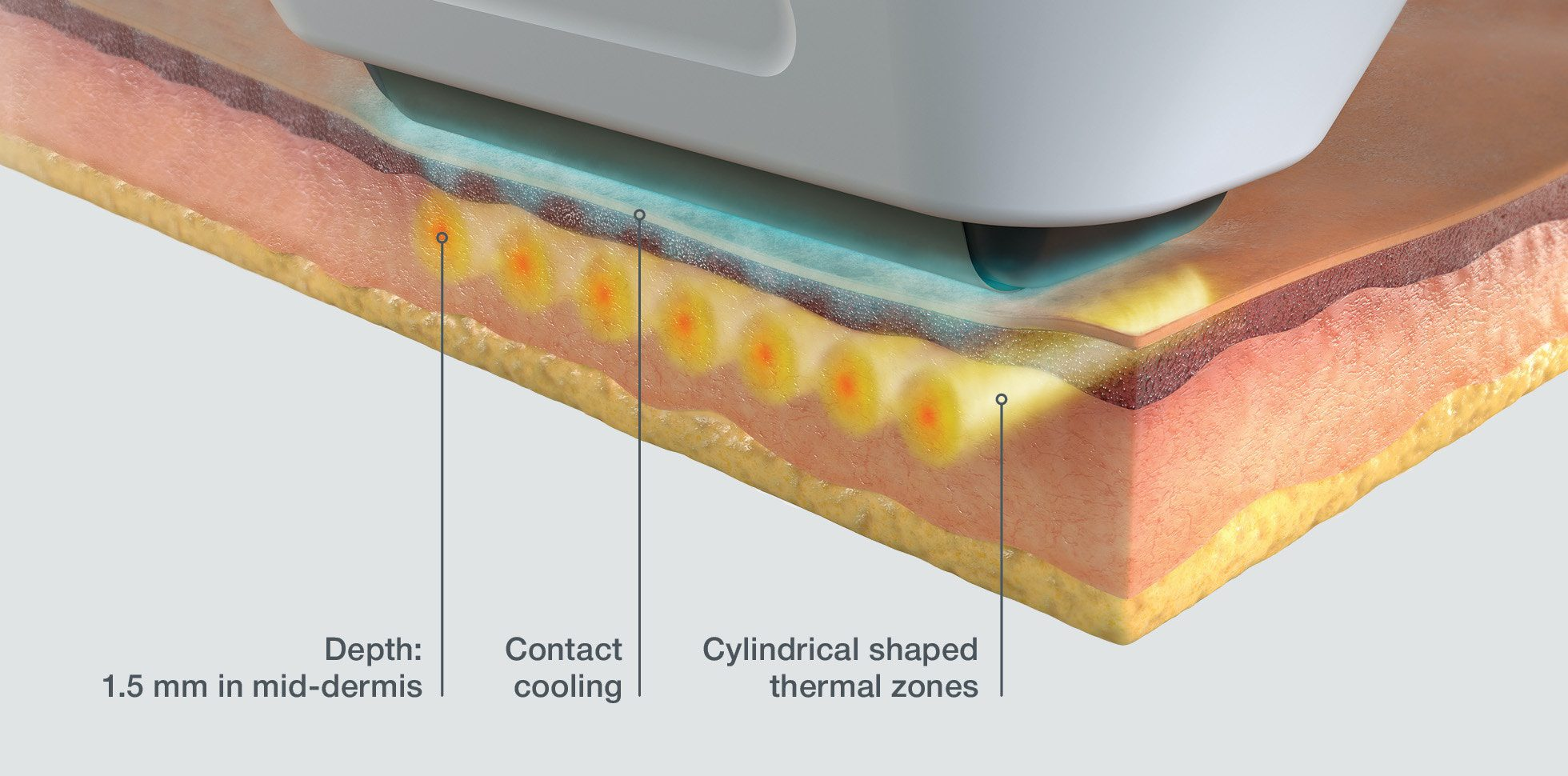 Softwave Skin treatment how it works